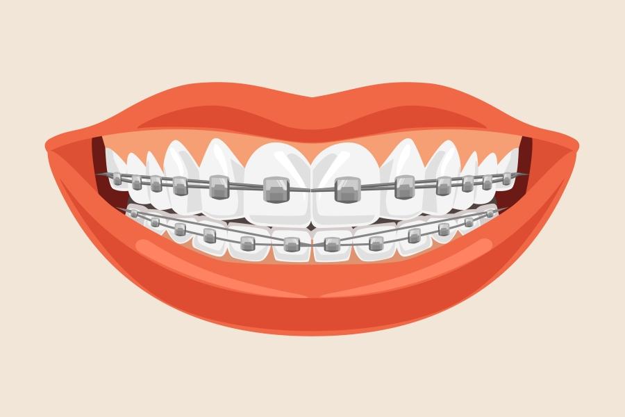 Aparat ortodontyczny - czy warto prostować zęby?