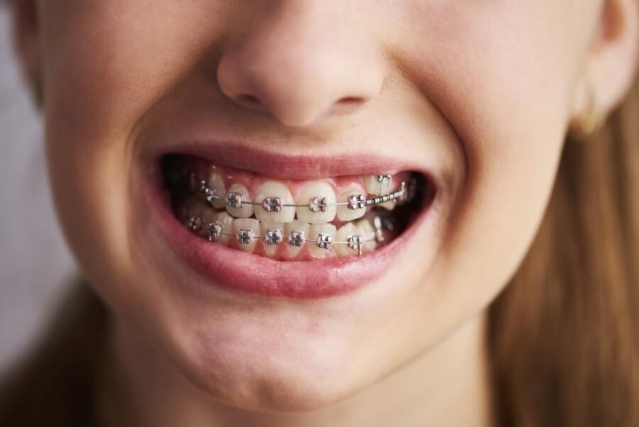 Aparat ortodontyczny - kiedy zdecydować się na jego założenie?