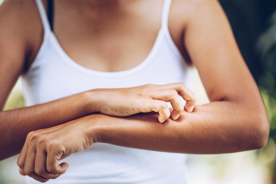 Atopowe zapalenie skóry - rozpoznanie i leczenie