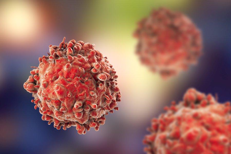 Białaczka - jak rozpoznać i jak leczyć białaczkę?