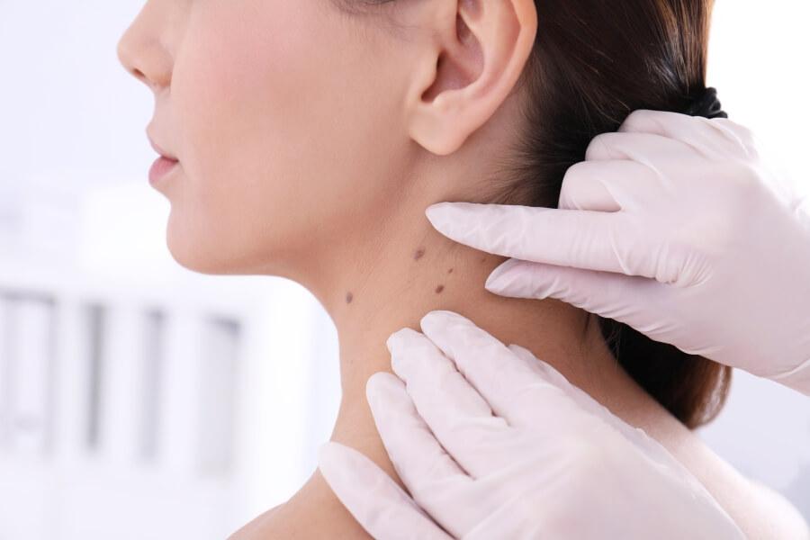 Czerniaki: jak rozpoznać raka skóry?
