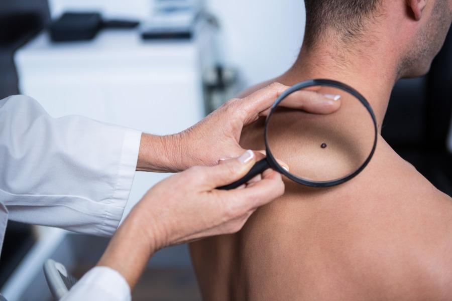 Czym się zajmuje dermatolog?