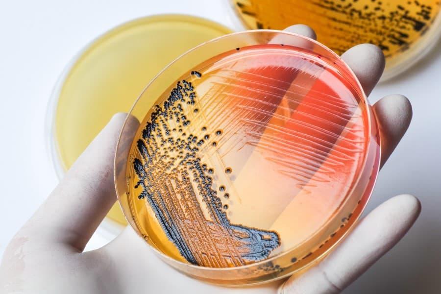 Szalka Petriego, a na niej hodowla bakterii duru brzusznego (łac. Salmonella typhi).