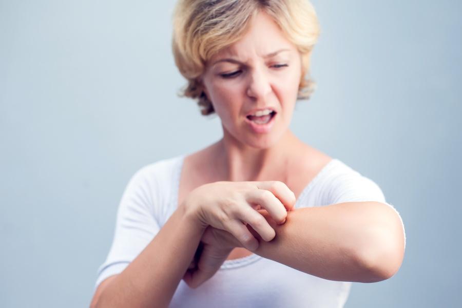 Egzema – co robić, gdy skóra łuszczy się i swędzi?