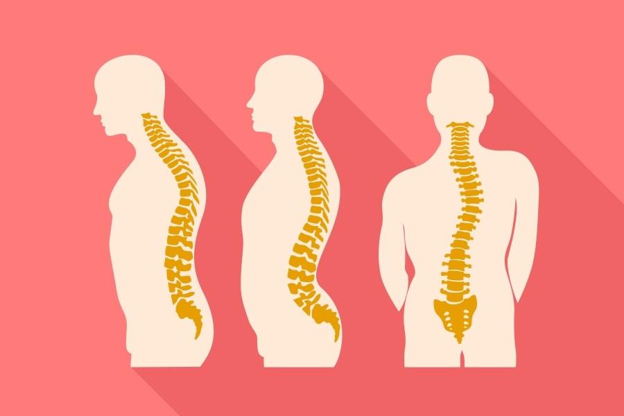 Hiperlordoza kręgosłupa