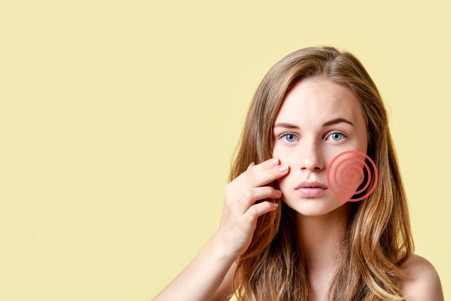 Jak leczyć trądzik różowaty?