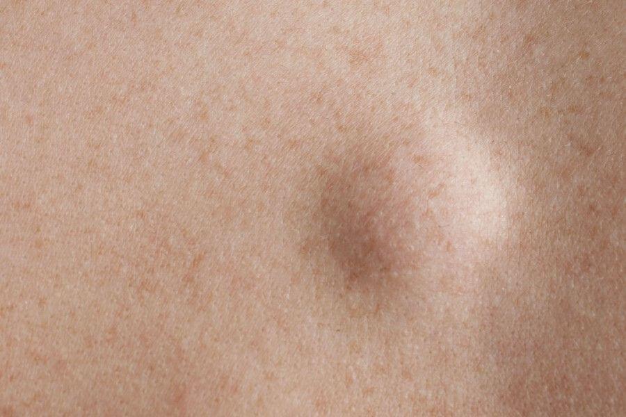 Zbliżenie na ludzką skórę i zmianę na jej powierzchni - kaszaka.