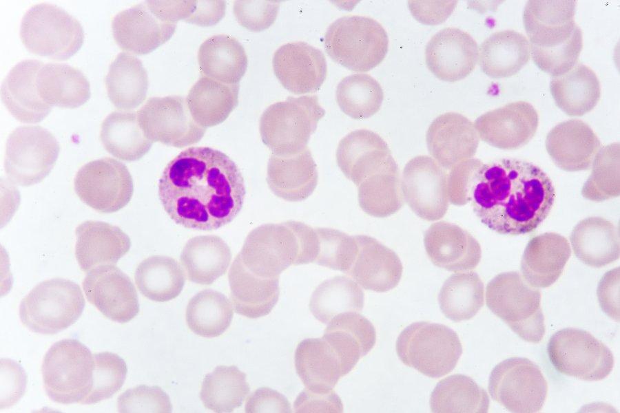Limfocyty – jaka jest ich rola w organizmie?
