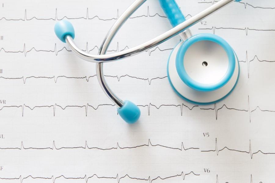 Stetoskop leżący na zapisie EKG, czyli elektrokardiogramie.