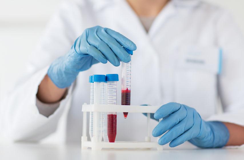Morfologia krwi - jak interpretować wyniki?