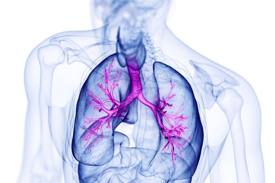 Mukowiscydoza - przyczyny, objawy, leczenie
