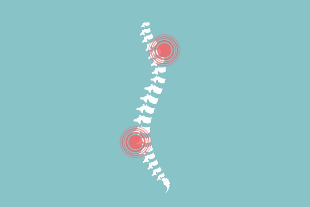 Najczęstsze przyczyny bólu kręgosłupa