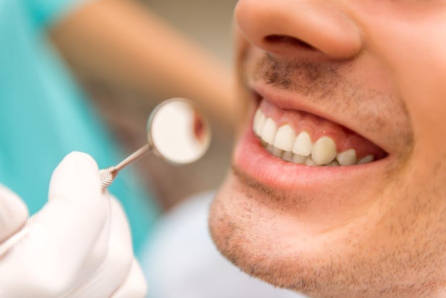 Piaskowanie zębów - sposób na osad nazębny