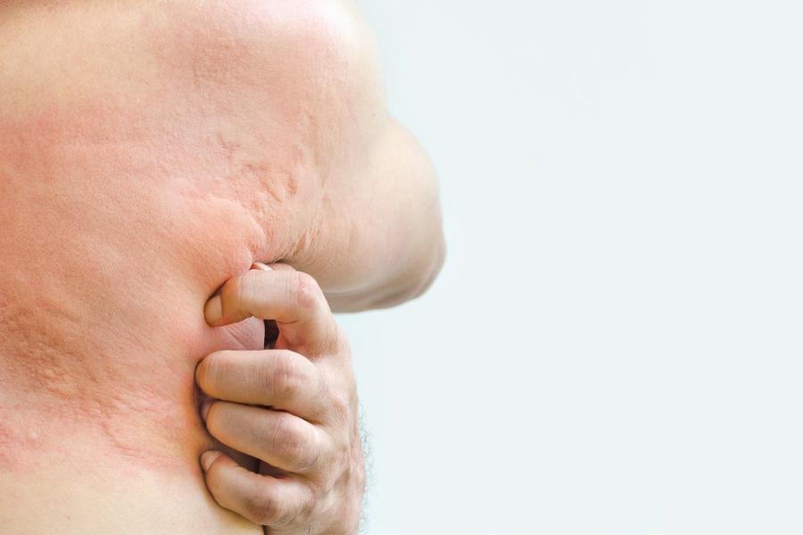 Mężczyzna drapie się po tułowiu i plecach, ma na skórze pokrzywkę alergiczną.