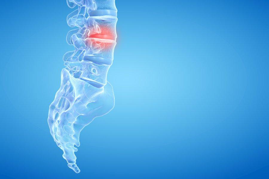 Przepuklina kręgosłupa - objawy