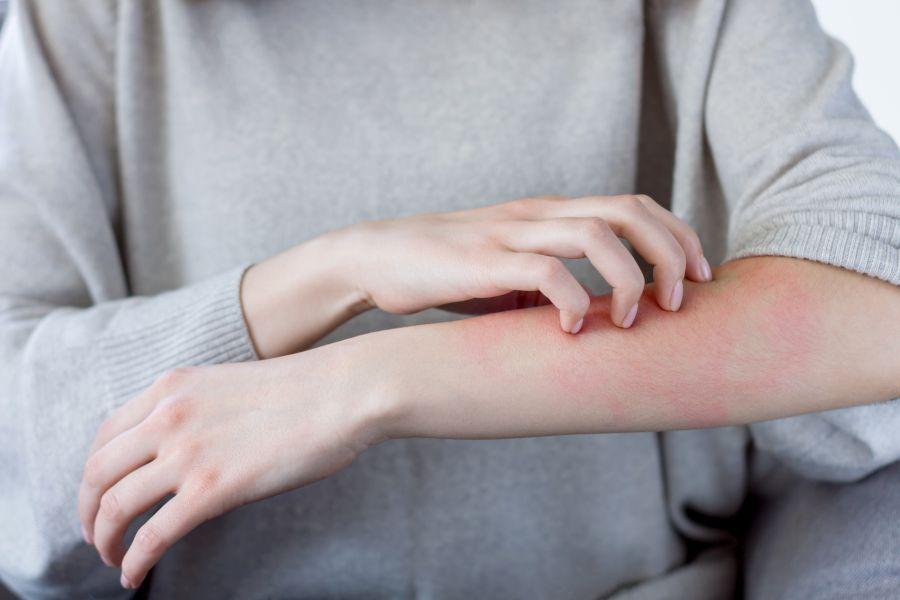 Świerzb − objawy, diagnoza, leczenie