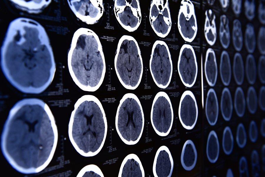 Tomografia komputerowa - na czym polega i kiedy się ją wykonuje?