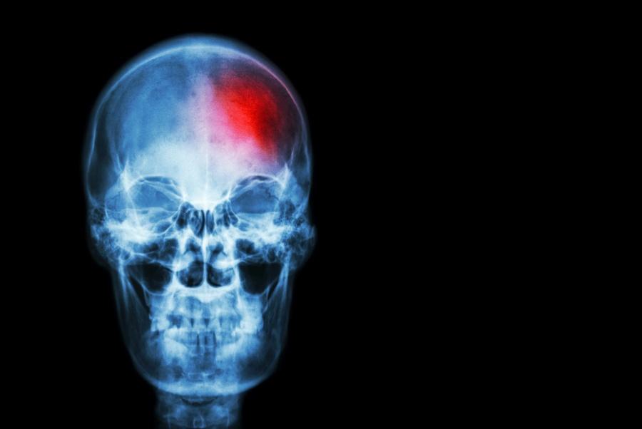 Udar mózgu - przyczyny i leczenie