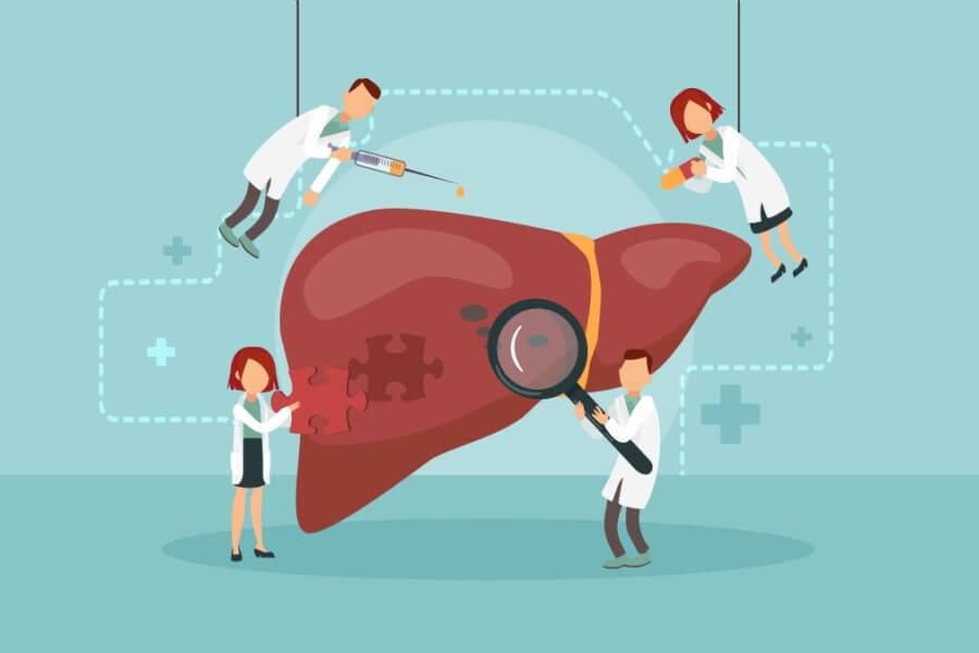 Rysunkowi lekarze badają i leczą chorą wątrobę.