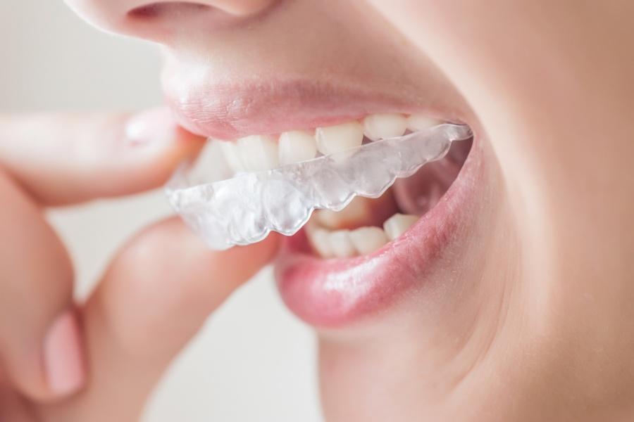 Wybielanie zębów: w domu czy u stomatologa?