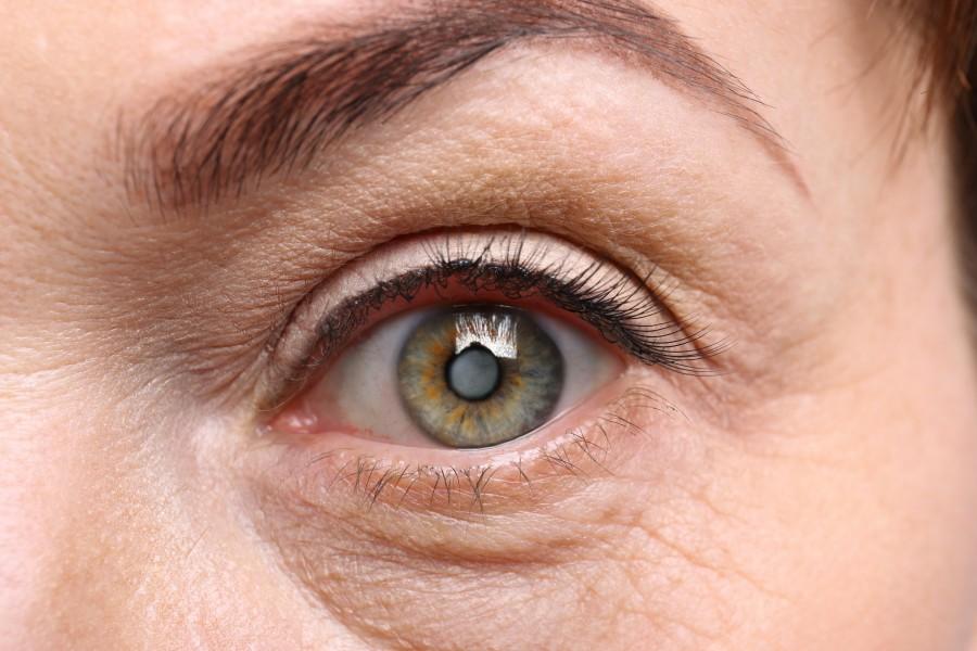 Zaćma - groźna choroba oczu. Jak wygląda leczenie?